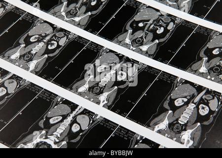 Multi-slice computed tomography, magnetic resonance imaging, MRI examination of the internal organs - Stock Photo