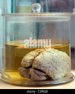 Real human brain in a glass jar - Stock Photo