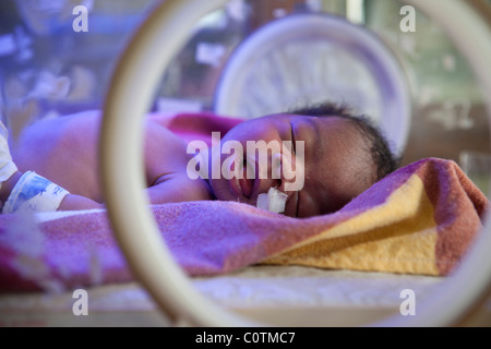 A premature baby receives care in the Special Care Baby Unit at Mulago Hospital in Kampala, Uganda. - Stock Photo