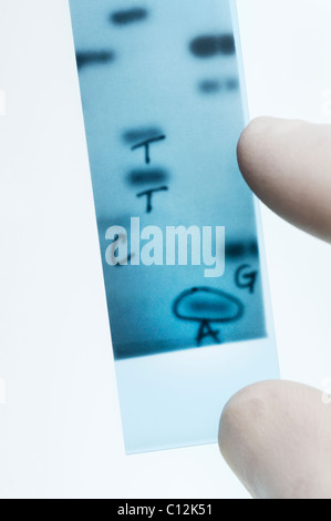 DNA sequencing. Scientist points to bands representing nucleotide bases (A,C,T,G) in an x-ray image of a gel.  Sanger - Stock Photo