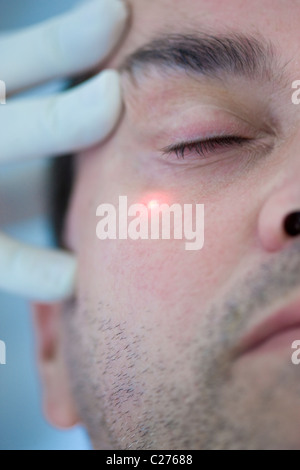 Man Receiving Laser Treatment on Face - Stock Photo