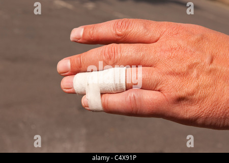 A close up of a mans hand showing a bandage and a dislocated finger trying to heal - Stock Photo