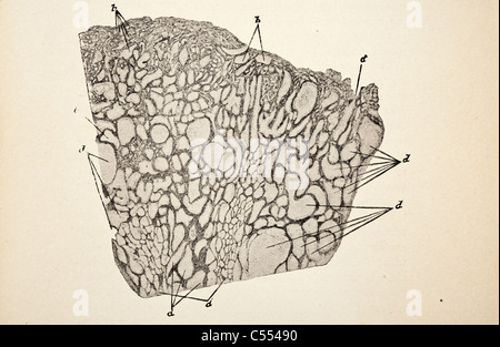 Anatomy of Intestinal Diseases including Cancer - Stock Photo