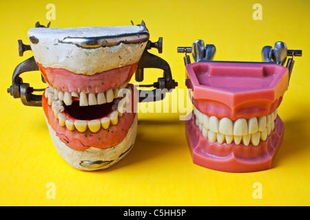 Dental models, bad teeth, good teeth - Stock Photo