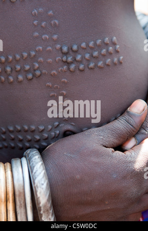 Detail of scarification used by Mursi tribeswomen in the Lower Omo Valley, Southern Ethiopia, Africa. - Stock Photo