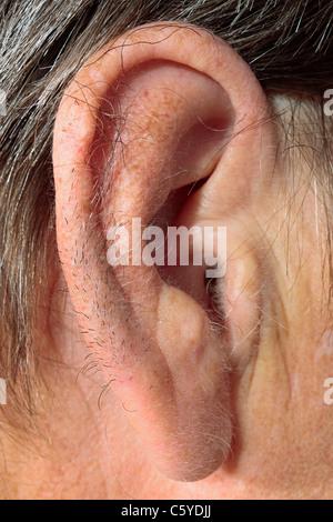 Hairy Ear Rims 35