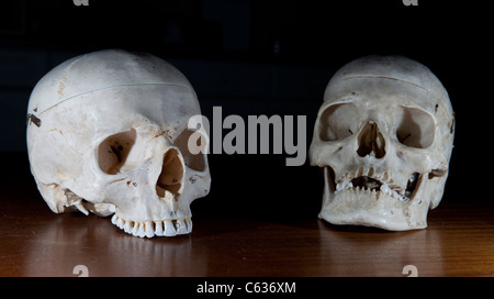 Two human skulls used as teaching aids for medical students at University. - Stock Photo
