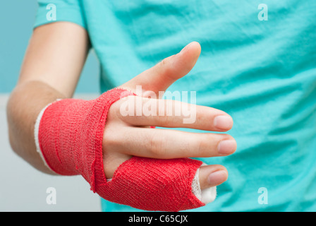 broken arm / hand / finger in red plaster stretched out with upper torso visible in the background - Stock Photo
