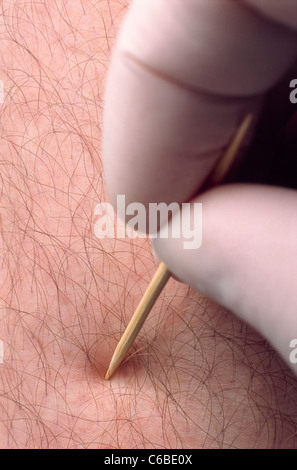 A neurologist conducting a sensory test on a patient's leg using a toothpick. - Stock Photo