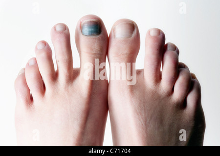 The big toe takes a toll after a season of skiing in Lake Tahoe, Nevada. - Stock Photo