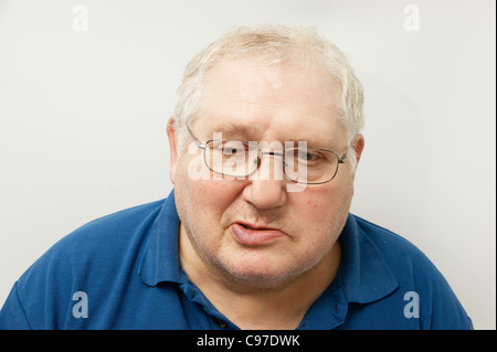 Elderly man suffering from Bell's Palsy - Stock Photo