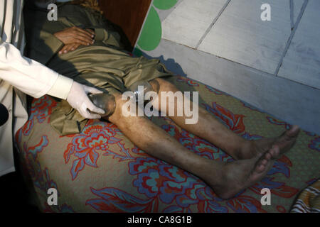 June 11, 2012 - Rafah, Gaza Strip, Palestinian Territory - Anwar Sheikh-Eid, 42, performs Hijama or cupping therapy, - Stock Photo