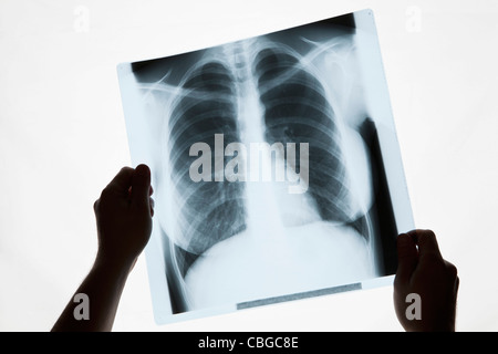 Hands holding a chest x-ray, close-up - Stock Photo