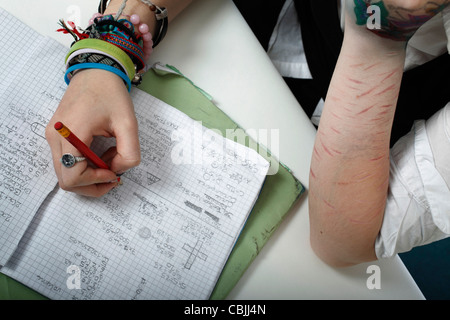 image of self harm, Cuts to the arm - Stock Photo