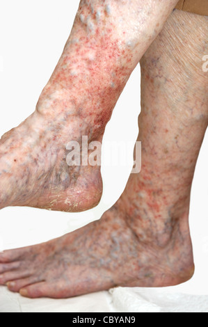 Elderly woman's legs suffering from eczema & varicose veins on a white background - Stock Photo