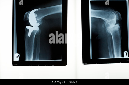 X-ray of right and left knees one with a prosthesis - Stock Photo