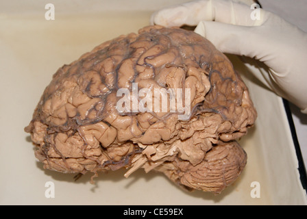 Original Human brain examining with hand (using gloves) by doctors. - Stock Photo
