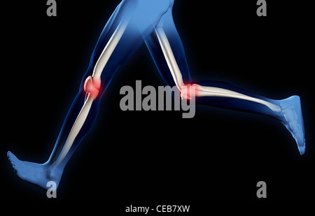 Pain in knee joints. A X-ray of feet of the man. It is isolated on a black background - Stock Photo