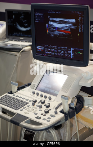 Medical Equipment ultrasound scanning. Diagnosis of pregnancy. - Stock Photo