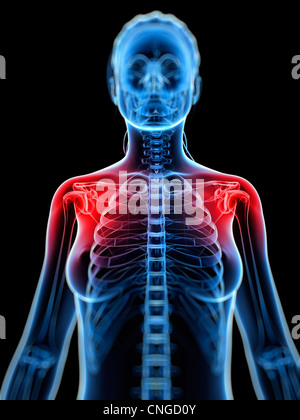 Shoulder pain  conceptual artwork - Stock Photo