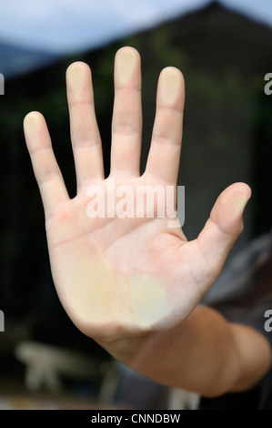 Close-up of Palm of Hand, Alps, France - Stock Photo
