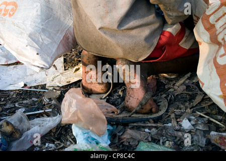 A young child laborer boy is wearing rubber slippers while scavenging at the Stung Meanchey Landfill in Phnom Penh, - Stock Photo