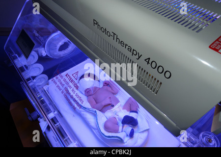 A newborn baby having photo therapy for jaundice - Stock Photo