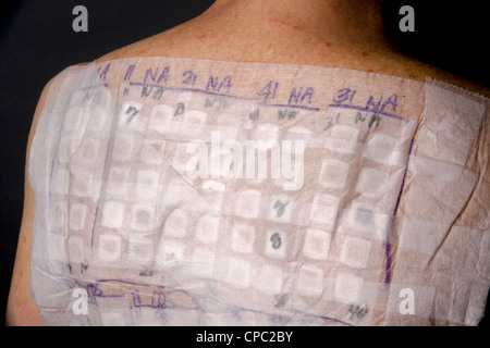 A woman patient's back is covered with the patches of an Chemotechnique Allergan Series to determine specific allergic - Stock Photo