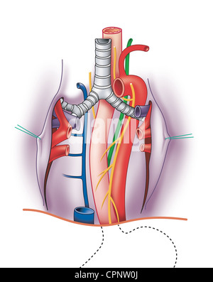 anatomy of the bronchus and bronchial tubes stock photo. Black Bedroom Furniture Sets. Home Design Ideas