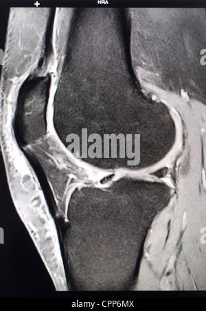 KNEE, MRI - Stock Photo