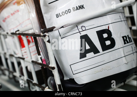 A blood bag containing group AB blood. Blood group AB contains both A an B antigens and has no Antibodies present. - Stock Photo