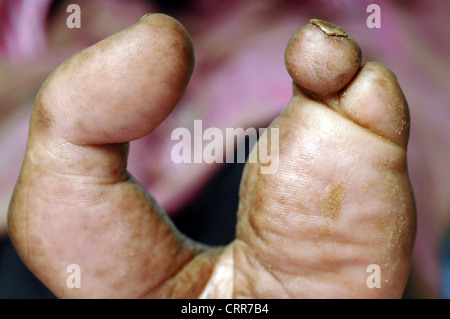 Close up of a left foot with second, third and fourth toes amputated. - Stock Photo