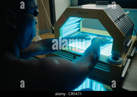 Uv Light Therapy Stock Photo 10677346 Alamy