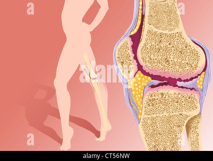 KNEE OSTEOARTHRITIS, DRAWING - Stock Photo