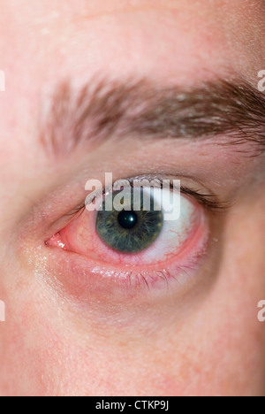 Close Up Of Eye Infection With Swollen Eyelid Stock Photo