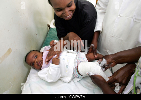 Kenya, clubfoot treatment at Moi University Hospital - Stock Photo