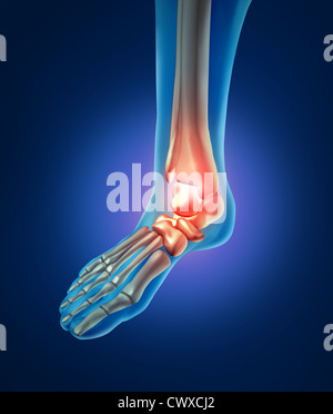 Ankle Foot Pain With A Skeleton Of The Walking Body Part
