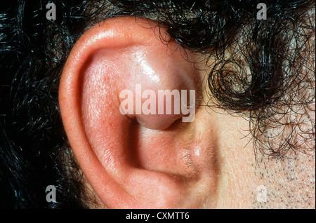 how to avoid cauliflower ear