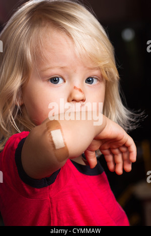 A young injured boy showing his elbow with  band aid on. - Stock Photo