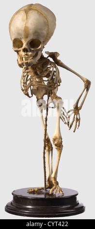 A German skeleton prepared for pathological or anatomical studies, 19th Century Elaborately prepared, complete skeleton - Stock Photo