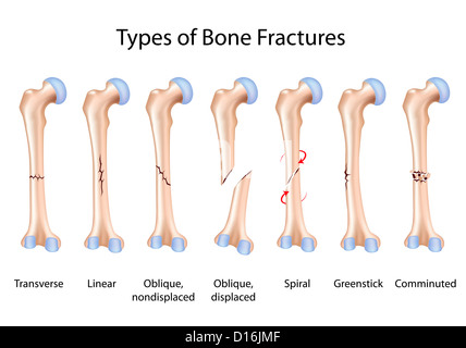 Types of human bone fractures illustration Stock Photo: 35828995 - Alamy