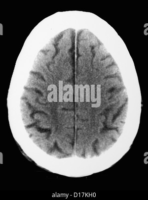 CT scan of elderly man with old occipital infarct - Stock Photo