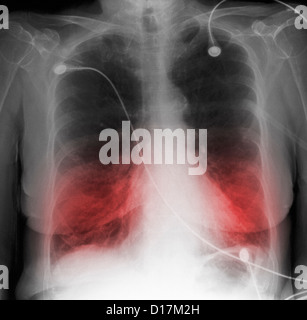 chronic obstructive pulmonary disease copd in the elderly Chronic obstructive pulmonary disease (copd) for at least one  elderly they  are difficult for her as well there is nobody else at home with us patient no 4: i .
