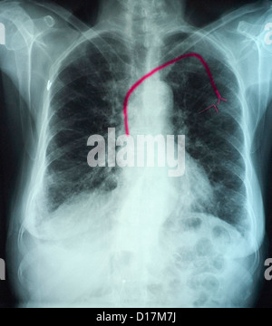 Chest xray showing infusion port into the heart - Stock Photo