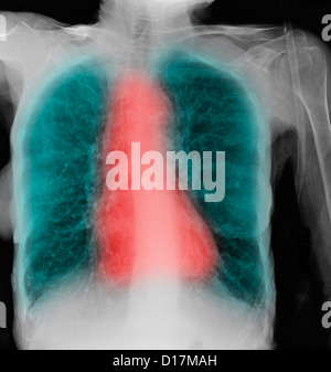 CXR of elderly woman smoker with COPD - Stock Photo