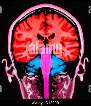 MRI brain sagital section normal - Stock Photo