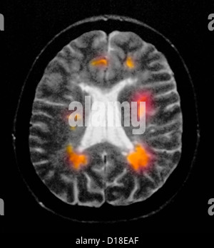 Brain MRI showing multiple sclerosis - Stock Photo