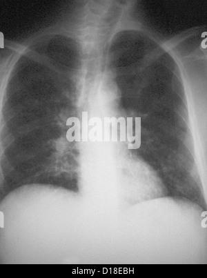 AIDS patient with pneumocystis carinii pneumonia - Stock Photo