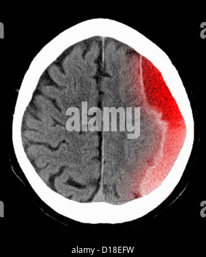 CT scan of the head with subdural hematoma - Stock Photo