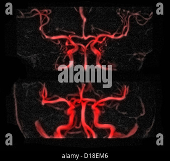 MRI vascular brain radiograph, gadolinium contrast - Stock Photo